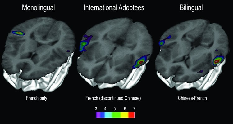bilingual-brain-scan